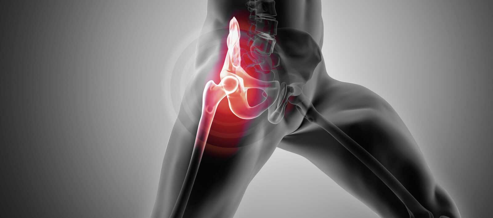 Prothèse totale de hanche rééducation à paris - dr Paillard
