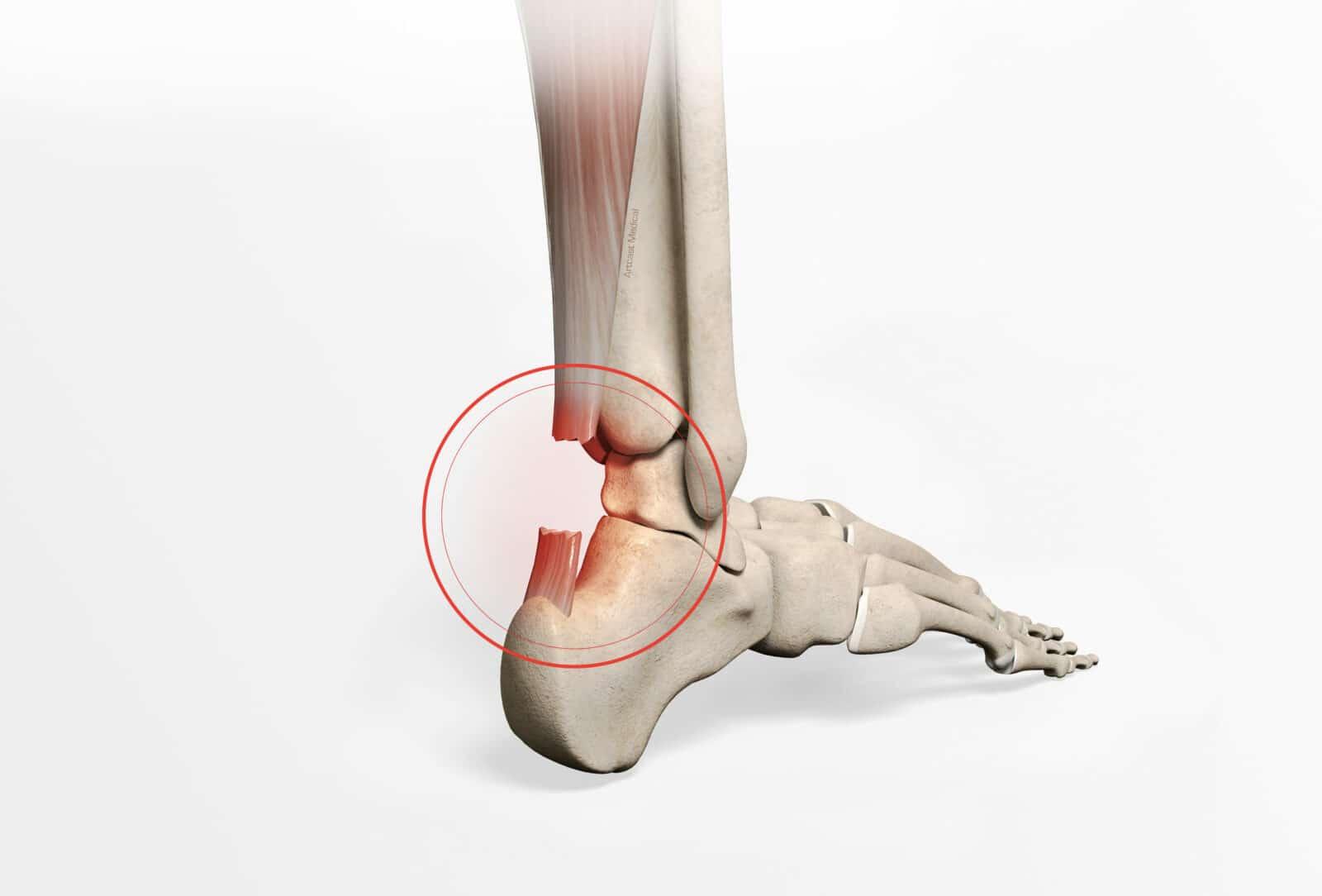Rupture tendon d'Achille: Diagnostic et traitement à Paris - Dr Paillard